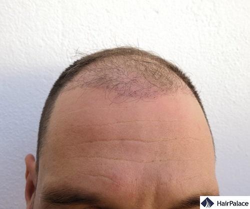 L'area ricevente 3 mesi dopo l'intervento con i capelli caduti