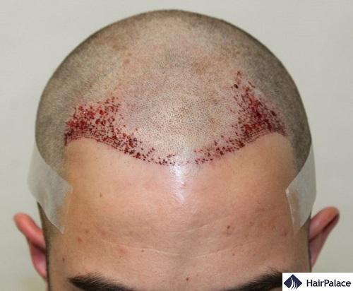 L'attaccatura dopo l'impianto di 2447 capelli