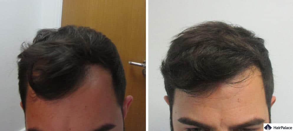 L'attaccatura dei capelli di Enzo prima e dopo il trapianto
