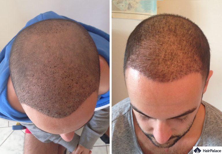 Area impiantata 1 e 3 settimane dopo il trapianto di capelli FUE2