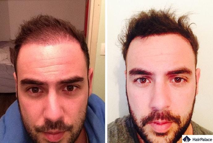 Attaccatura dei capelli alle visite di controllo a 3 e 6 mesi