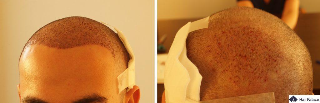 Area impiantata dopo il trapianto di capelli FUE2