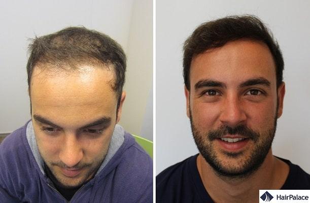 risultato finale dopo il trattamento
