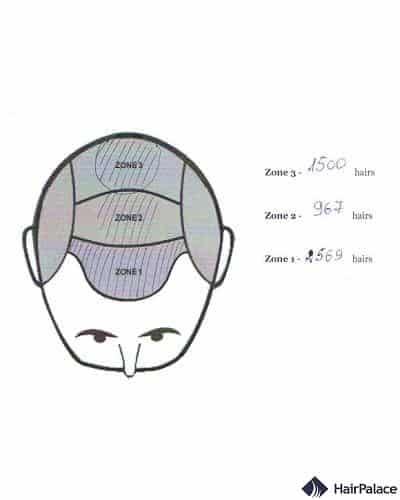 Distribuzione dei capelli – Secondo  intervento chirurgico