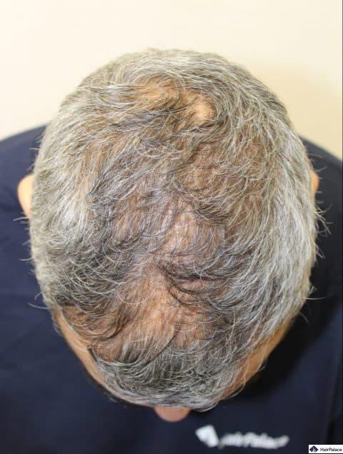 Prima dell'intervento di trapianto dei capelli