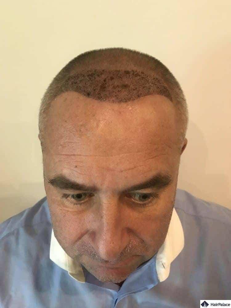 Condizione 1 settimana dopo il trapianto di capelli