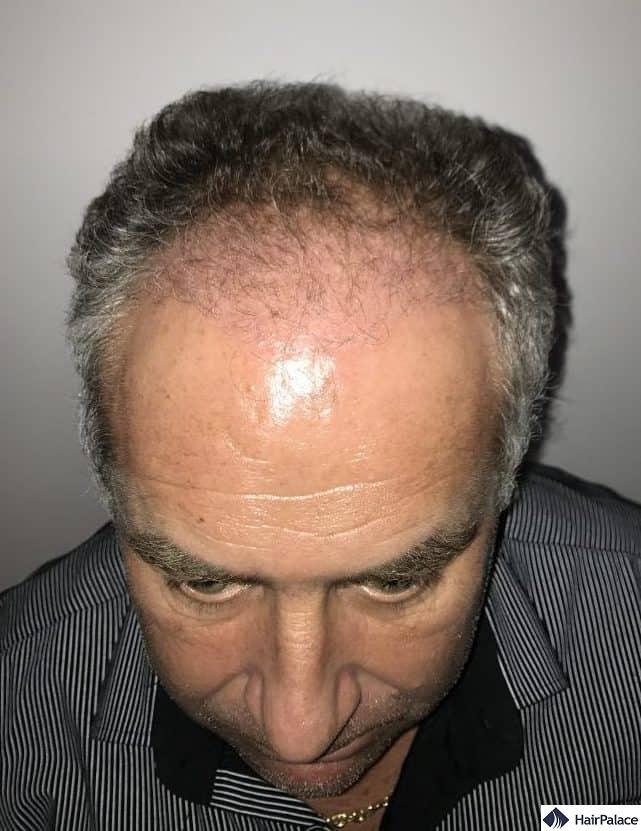 Condizione dell'area impiantata 3 mesi dopo il trapianto di capelli