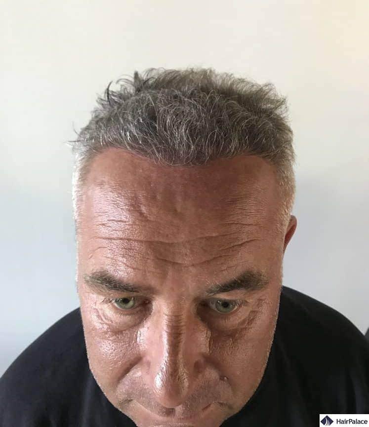 Risultato 6 mesi dopo il trapinato di capelli