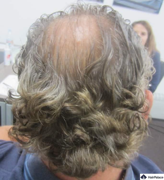 Area donatrice di Franck prima del trapianto capelli