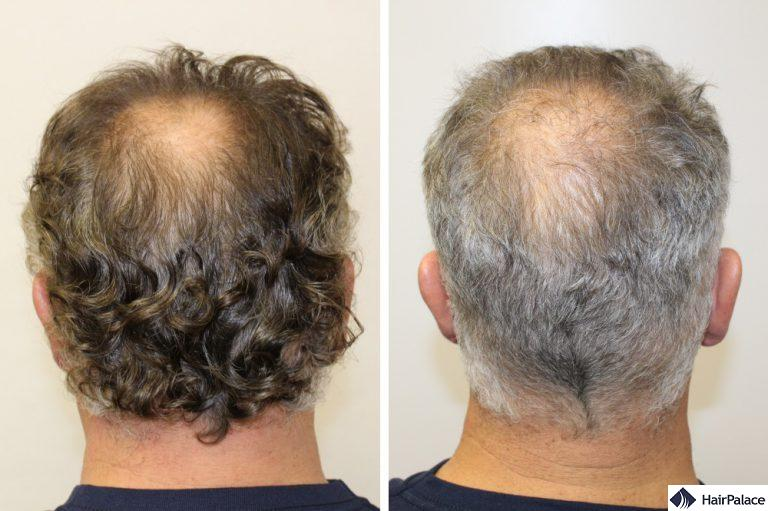 La zona donatrice di Franck prima e dopo il trapianto di capelli