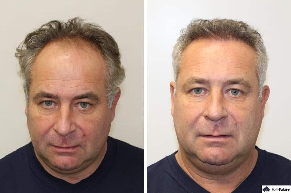 Franck prima e dopo il trapianto di capelli