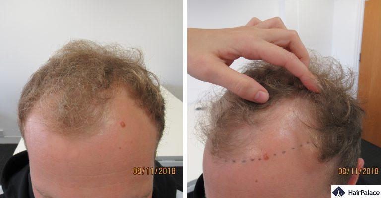 Abbozzo dell'attaccatura dei capelli fatto in occasione della consulenza