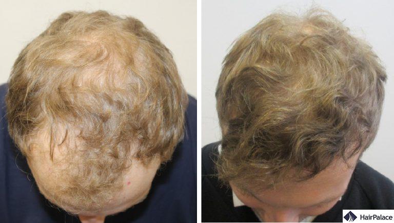 Il risultato finale del trapianto dei capelli