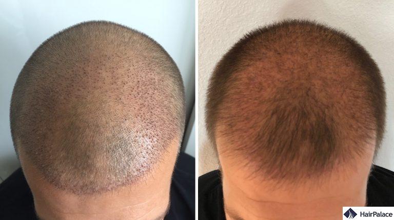 L'area impiantata 1 e 3 settimane dopo il trapianto di capelli