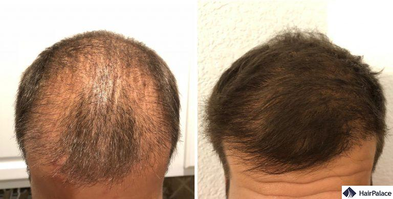 L'area frontale di Sam 3 e 6 mesi dopo il trattamento