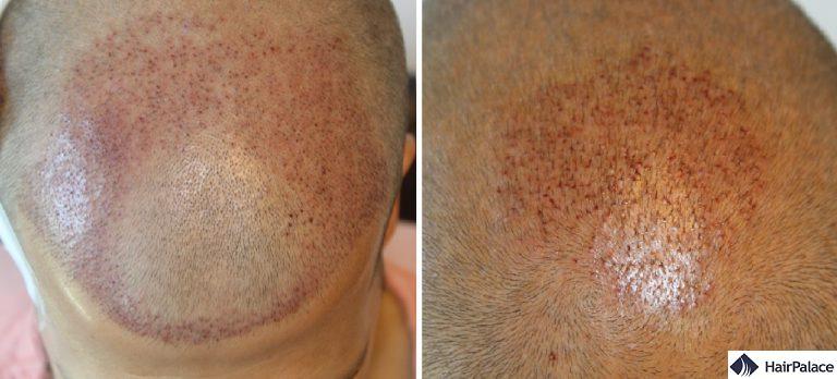 Distribuzione dei capelli sul davanti e sulla corona subito dopo il trapianto di capelli