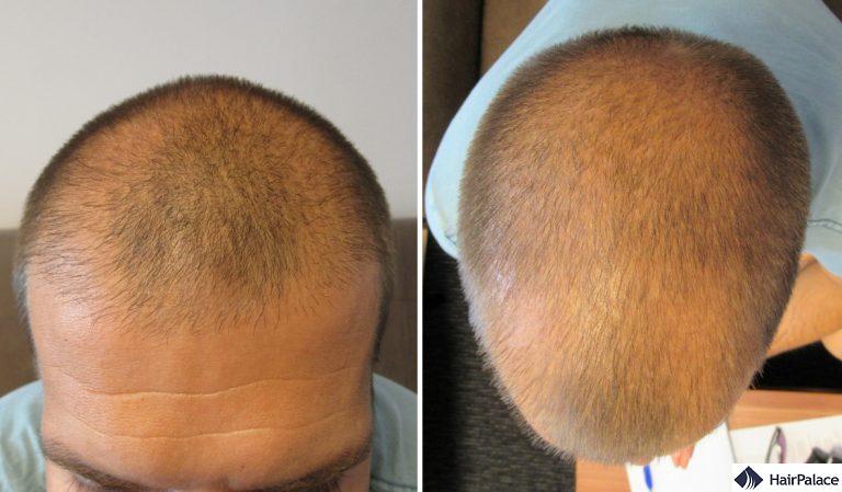 Diradamento all'attaccatura dei capelli e davanti, e alla corona come visto alla consultazione prima del trapianto di capelli