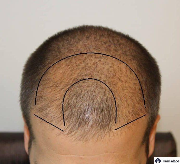 Assottigliamento a forma di U nella parte anteriore