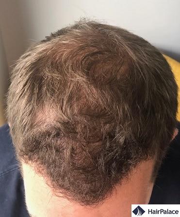 6 mesi dopo l'intervento