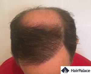 tom 1 anno dopo il trapianto di capelli
