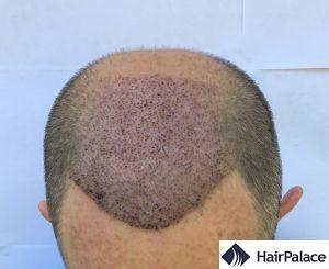 tom 1 settimana dopo l'impianto dei capelli
