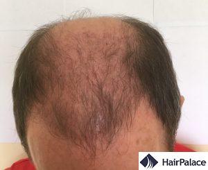 tom 3 settimane dopo l'impianto dei capelli