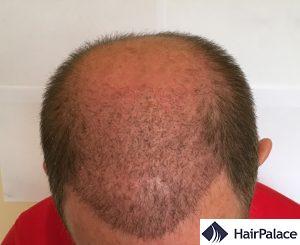 tom 2 settimane dopo l'impianto dei capelli