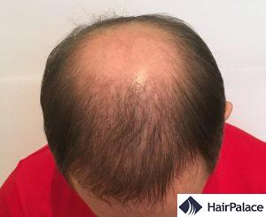 Tom 6 mesi dopo il trapianto di capelli hair