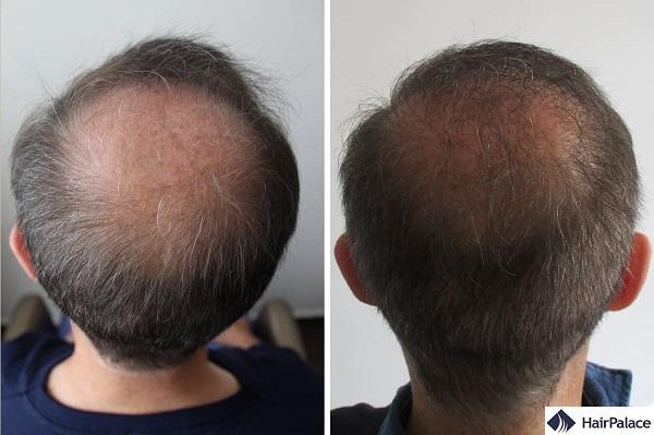 tom trapianto di capelli risultato nuca