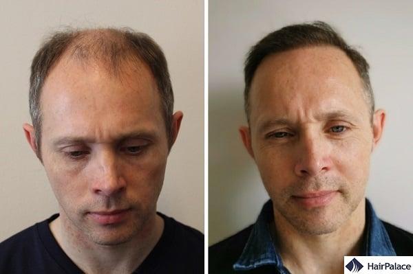 prima e dopo il trapianto di capelli Tom