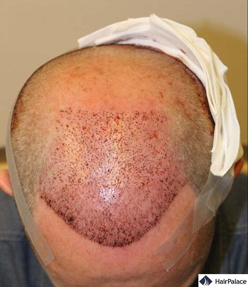 tom dopo il trapianto di capelli