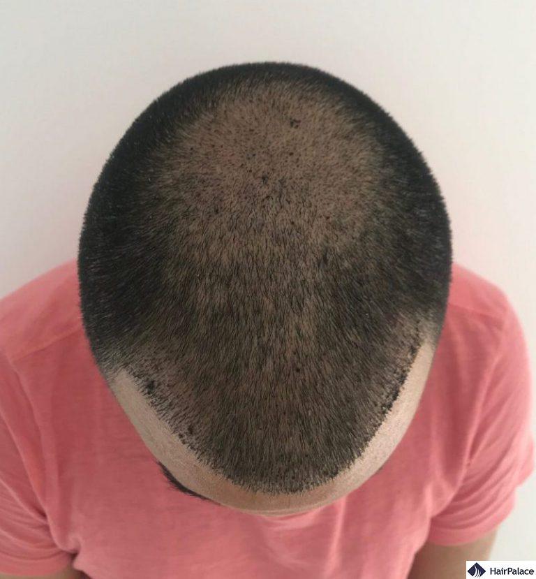 foto di controllo 1 settimana dopo il trapianto di capelli con croste visibili