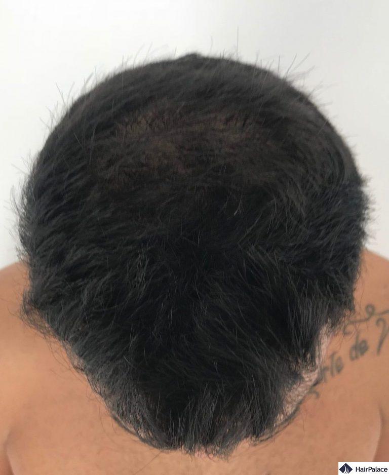 Yohann 6 mesi dopo l'intervento chirurgico con circa il 50% dei capelli impiantati cresciuti