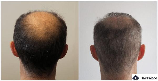 Tom 2 risultato del trapianto di capelli