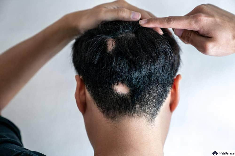 Alopecia areata: cos'è e come provoca la caduta dei capelli ?