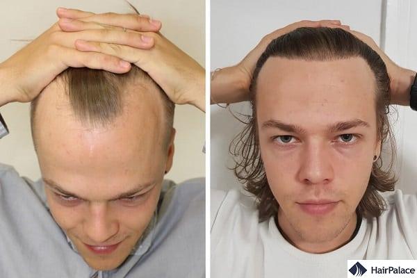 Risultati impressionanti con 6000 capelli