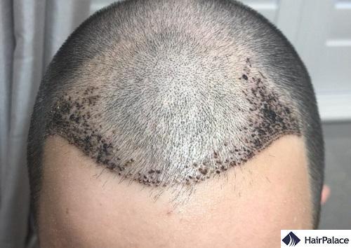 1 settimana dopo l'intervento