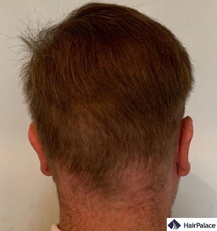 Area donatrice dopo 3 trapianti di capelli