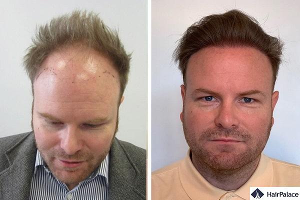 Un ottimo risultato con 3 interventi di trapianto dei capelli