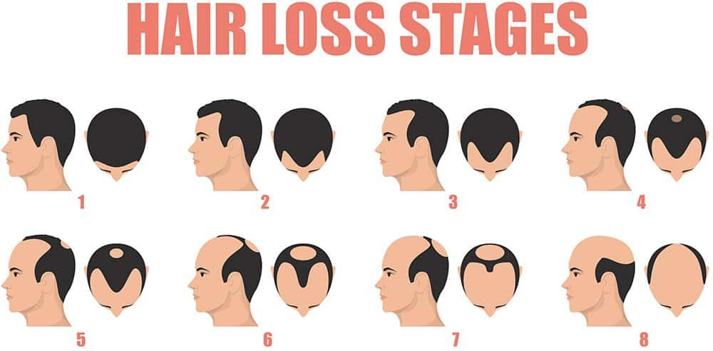 fasi di caduta dei capelli