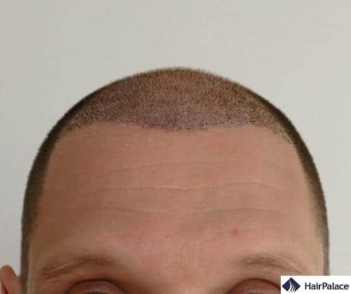 L'area impiantata di Jessy una settimana dopo il trapianto di capelli con alcune croste visibili