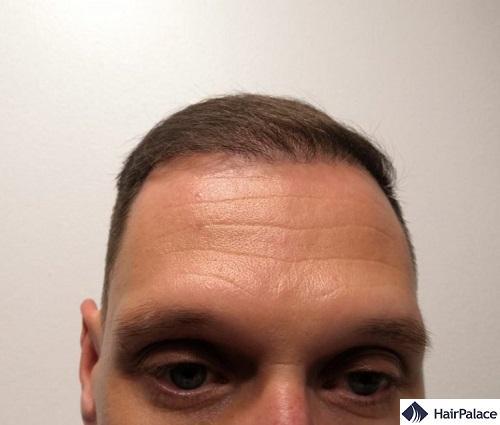 Risultato parziale all'attaccatura dei capelli 6 mesi dopo il trapianto di capelli FUE2