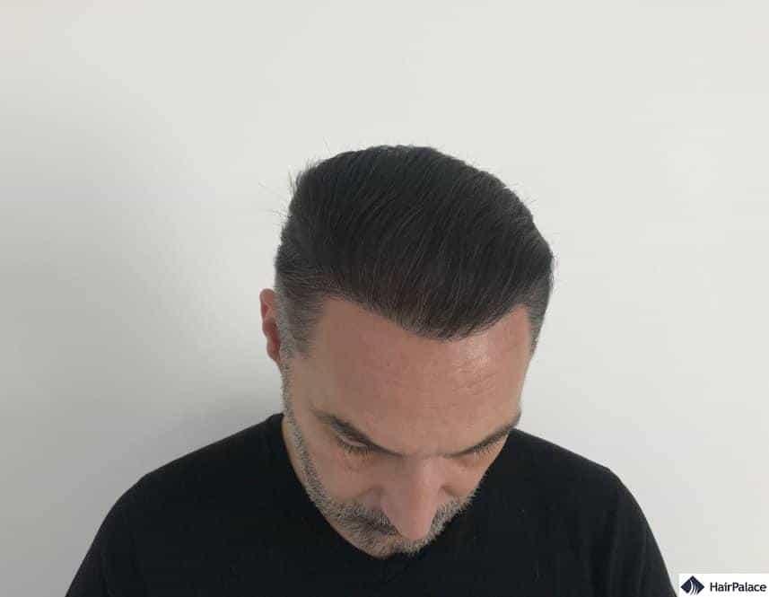 1 anno dopo il trapianto dei capelli