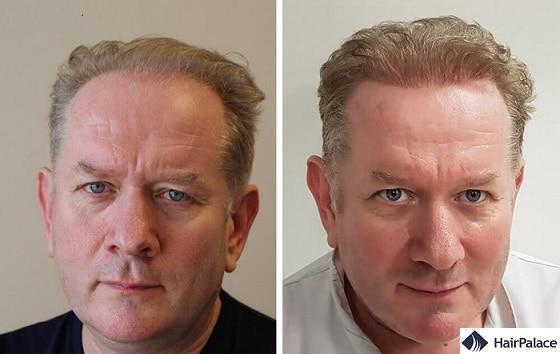 Un cambiamento notevole in un giorno con 4000 capelli trapiantati!