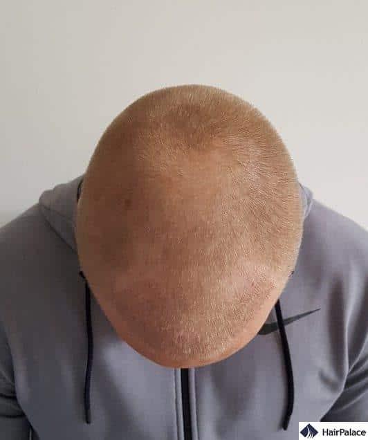 1 settimana dopo il trapianto capelli