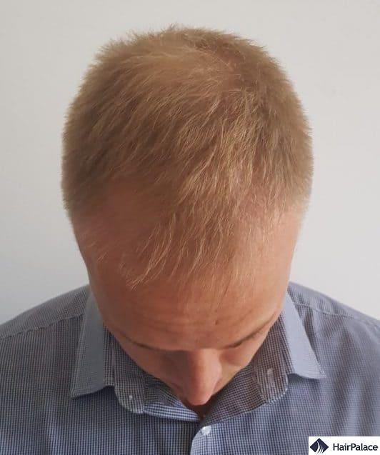 Stuart 3 mesi dopo il trattamento