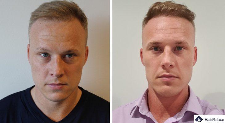Stuart prima e dopo il trapianto di capelli