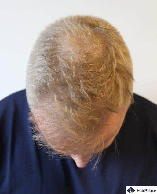 Stuart prima del trapianto di capelli