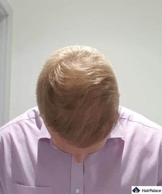 Risultato finale 1 anno dopo il trapianto di capelli