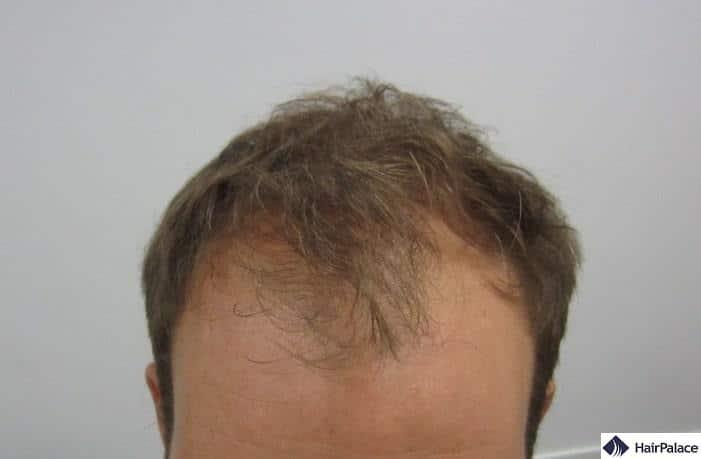 L'attaccatura dei capelli e la zona frontale di Toby al momento della consulenza